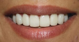 After aesthetic smile makeover