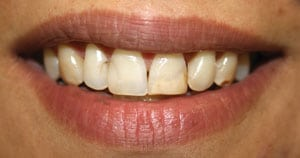 Before aesthetic smile makeover