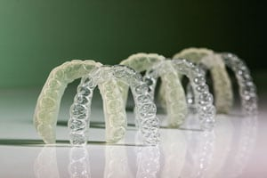 Sequential aligners with printedmodels from tdl PrecisionOrthodontics.