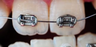 braces and decay
